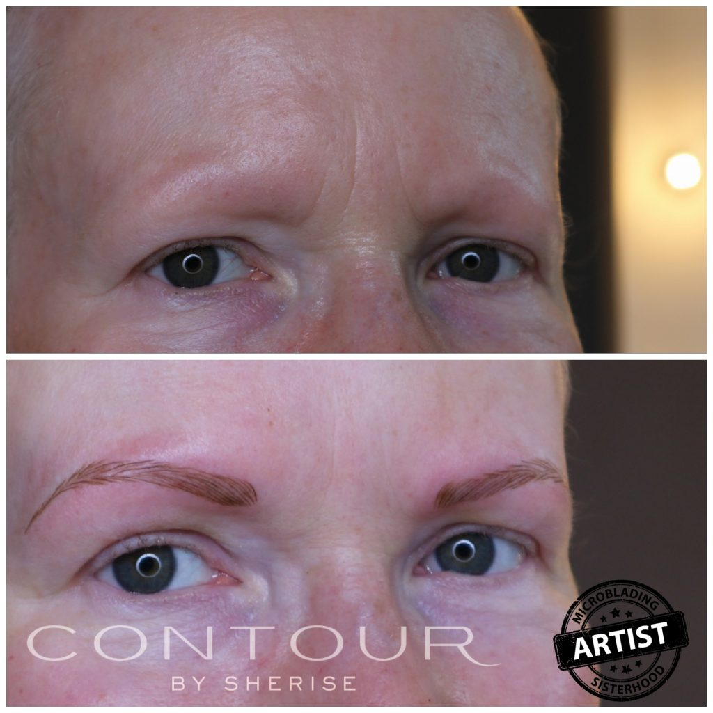 Semi permanent eyebrows for alopecia contour by sherise semi permanent eyebrows can be a godsend if you feel you no longer look like yourself as a result of a medical condition solutioingenieria Images